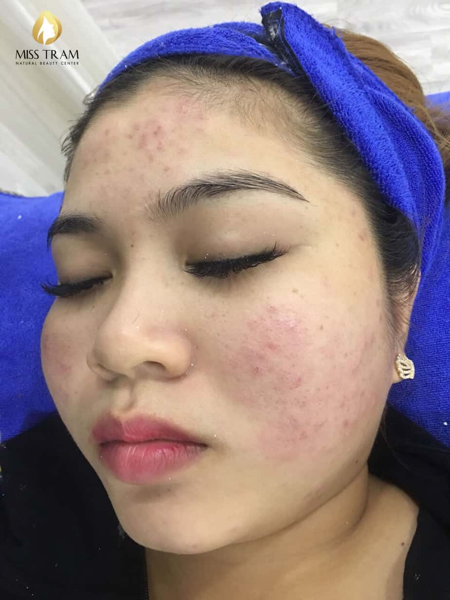 Before And After 2 Months Treat Acne Hidden Skin With High Technology CO2 Laser Fractional 4