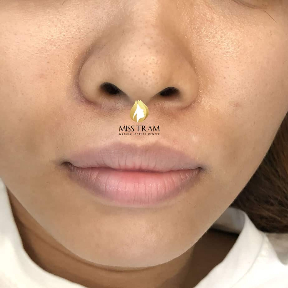 Before And After Deep Treatment And Lip Sculpture Collagen 3