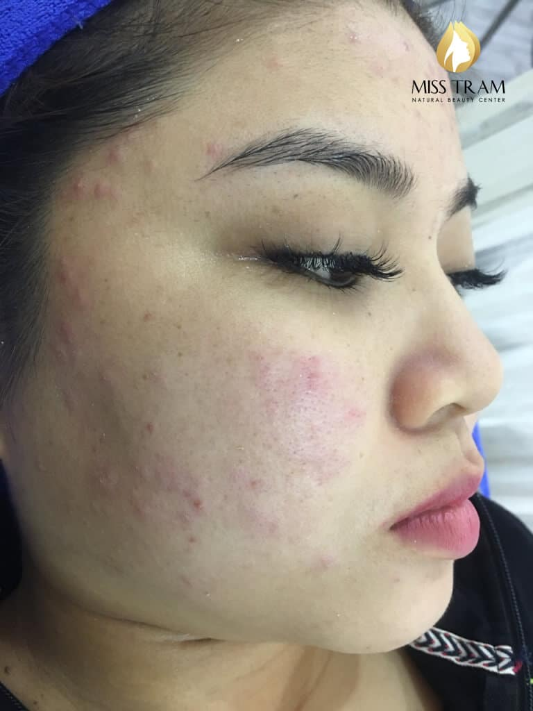Before And After 2 Months Treat Acne Hidden Under High Technology CO2 Laser Fractional 2