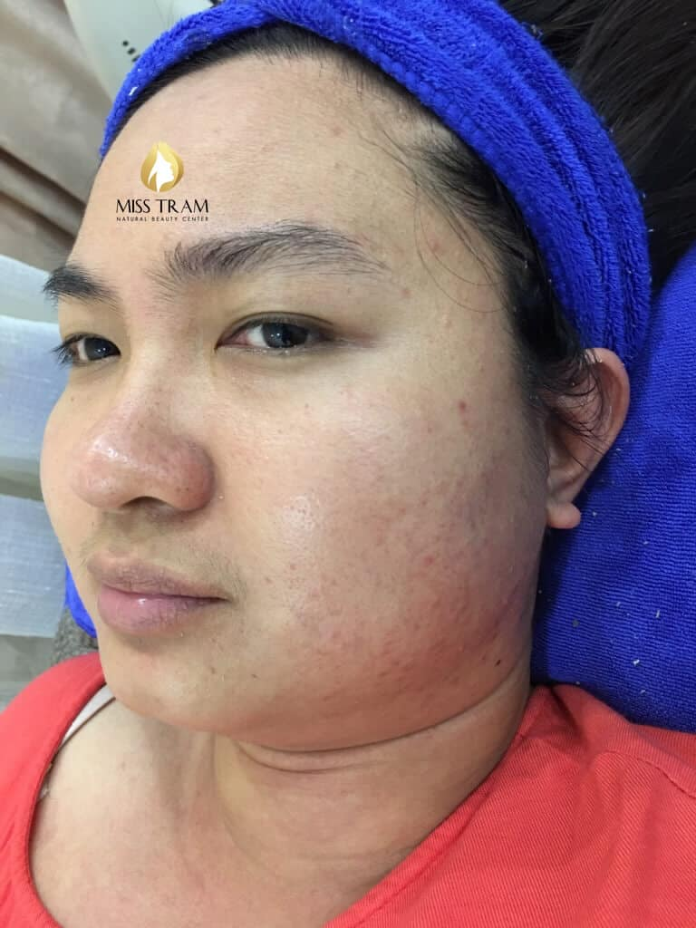 Before And After Hidden Acne Treating - Brightens And Tightens Pores 2