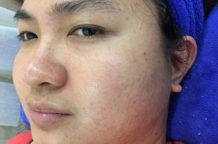 Before and After Hidden Acne Treatment, Pores - Brightens and Tightens Pores 7