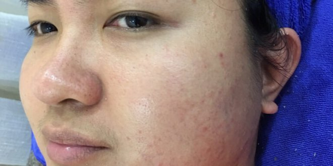 Before and After Hidden Acne Treatment, Pores - Brightens and Tightens Pores 1