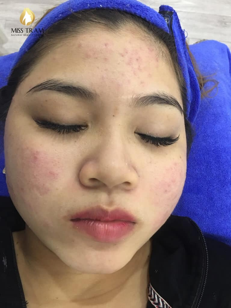 Before And After 2 Months Treat Acne Hidden Under High Technology CO2 Laser Fractional 3