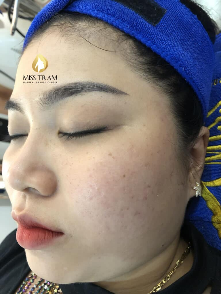 Before And After 2 Months Treat Acne Hidden Under High Technology CO2 Laser Fractional 6