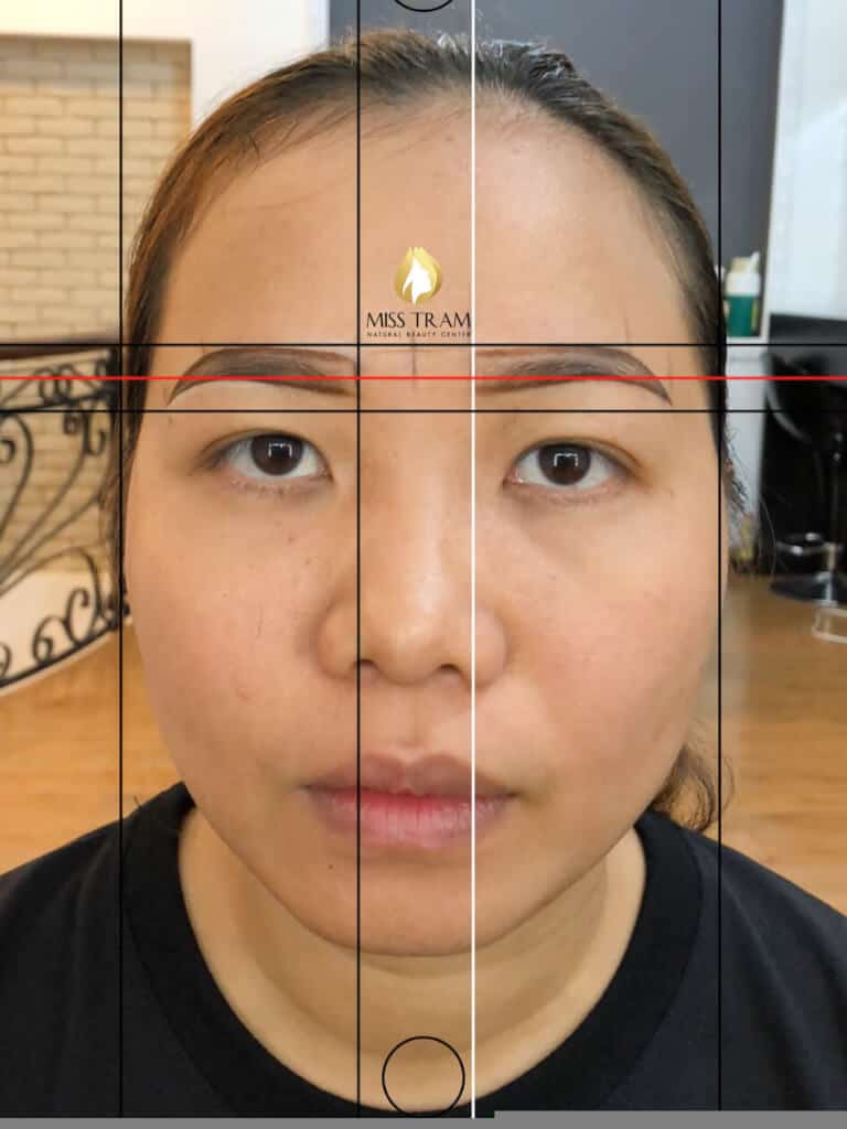 Before and After Natural Sculpting Technology 3
