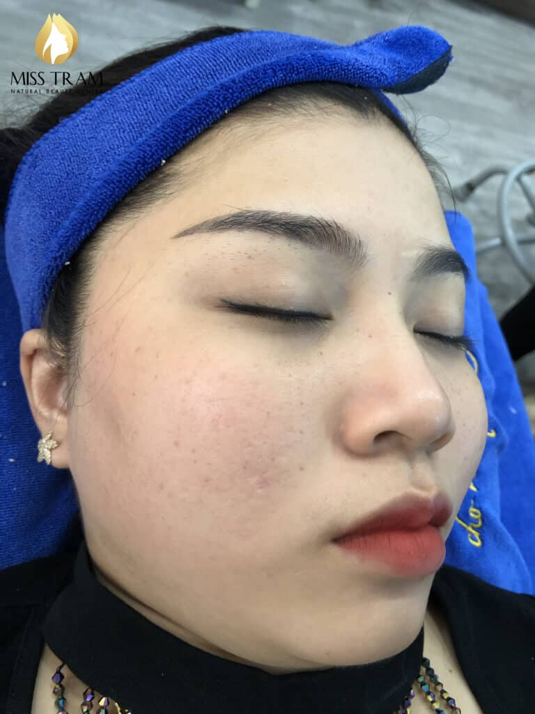 Before And After 2 Months Treat Acne Hidden Skin With High Technology CO2 Laser Fractional 5