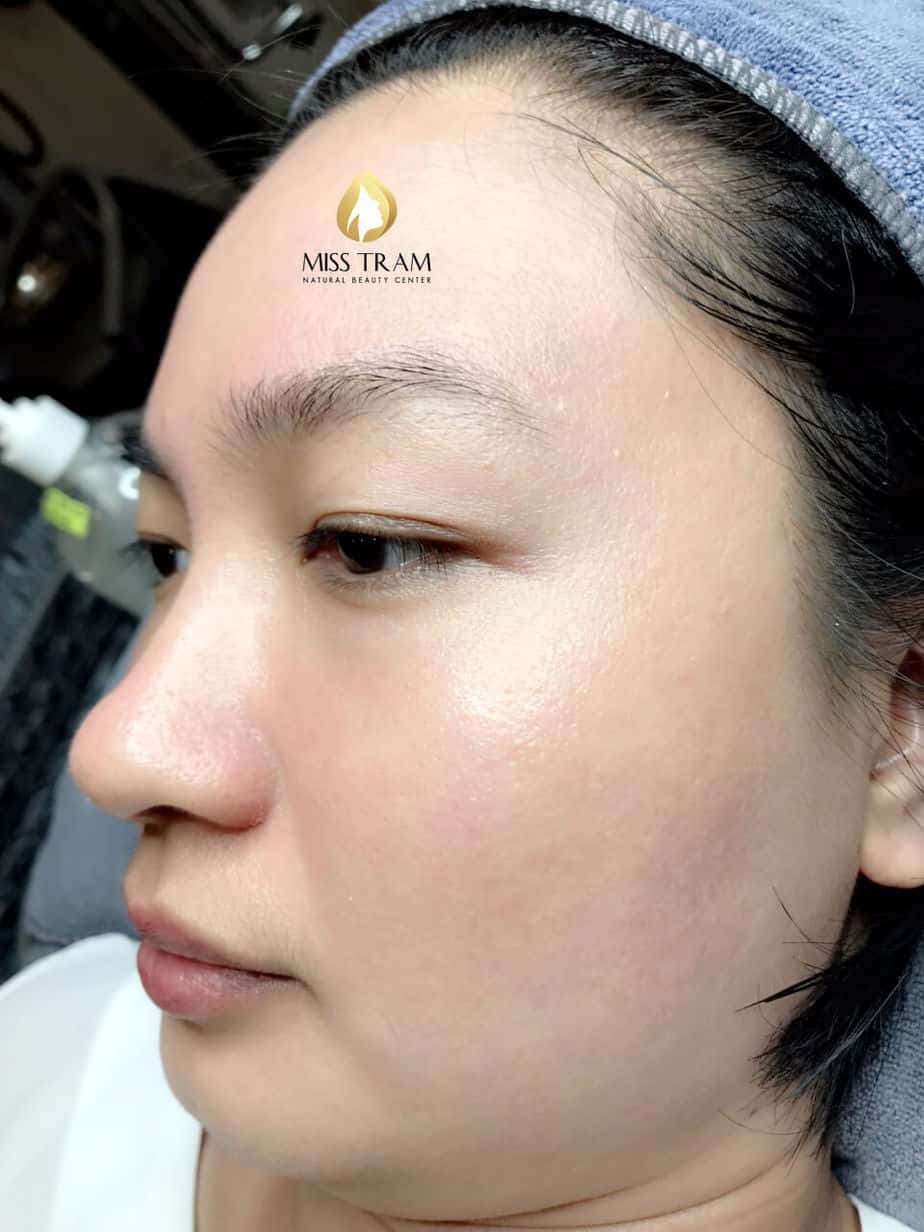 Before And After Hidden Acne Treating - Brightens And Tightens Pores 4