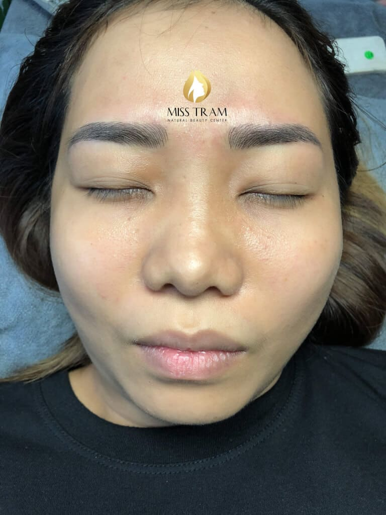 Before and After Natural Sculpting Technology 4