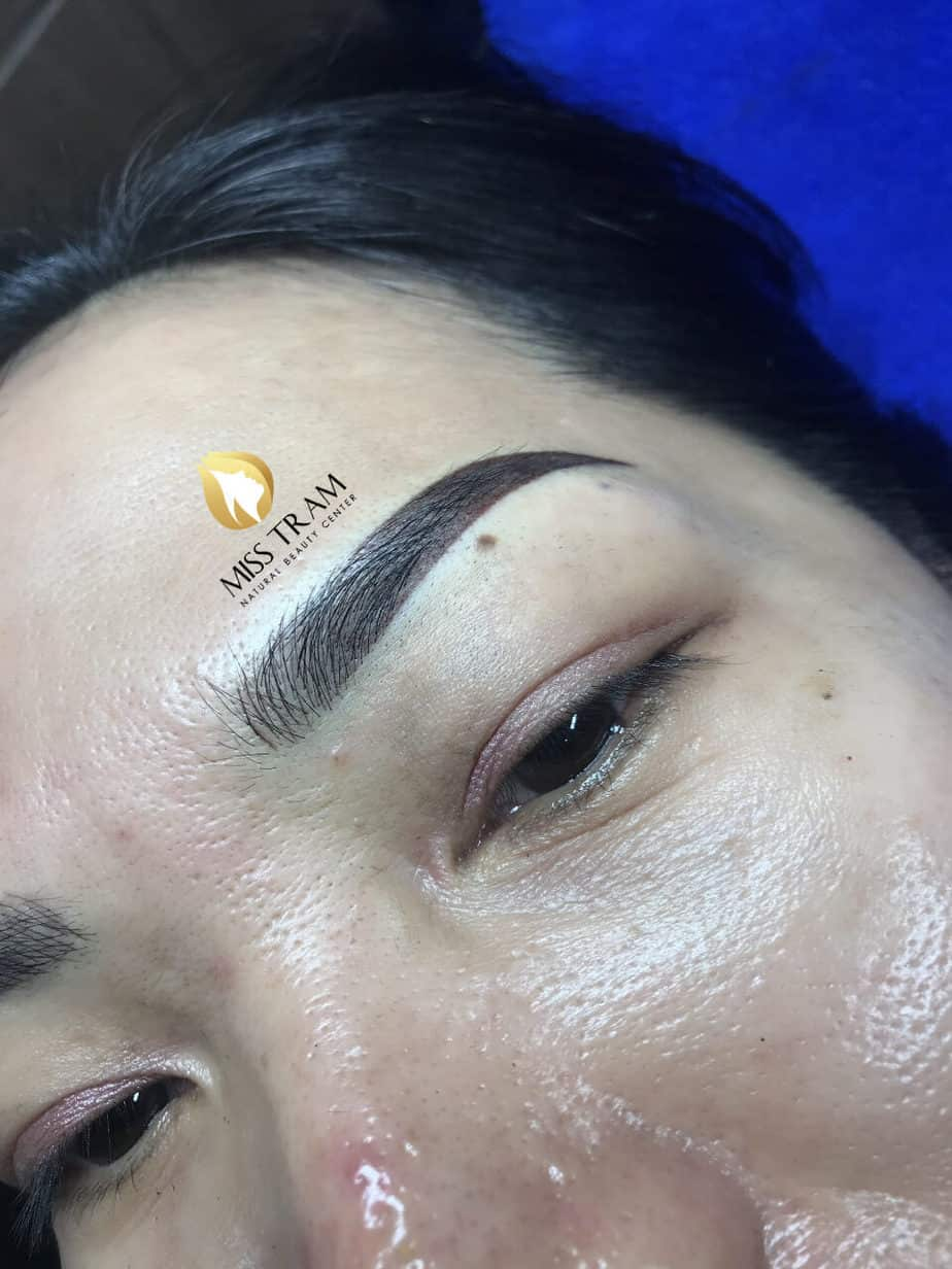 Before And After Treatment Of Blue Eyebrow Sculpting, Head Sculpting And Eyebrow Spraying 3