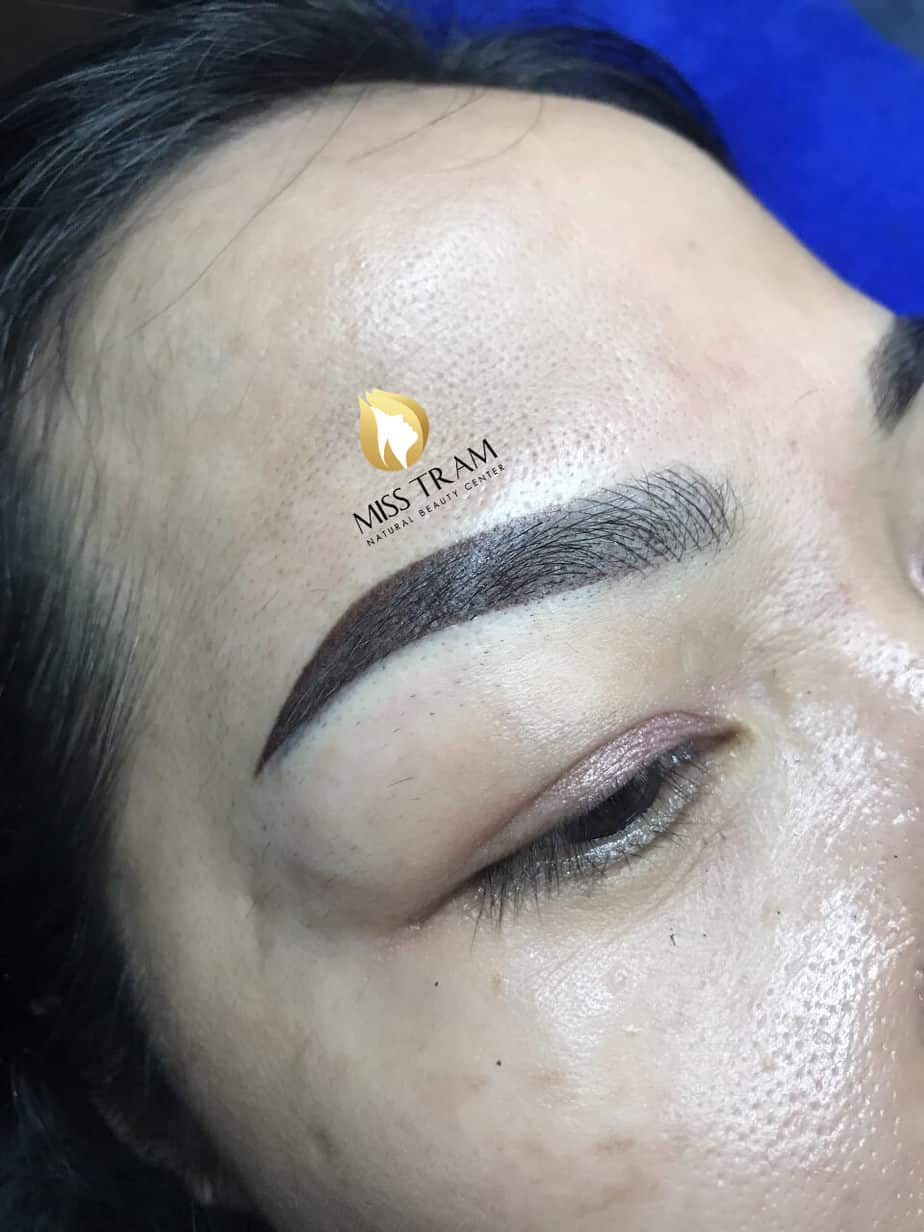 Before And After Treatment Of Blue Eyebrow Sculpting, Head Sculpting And Eyebrow Spraying 4