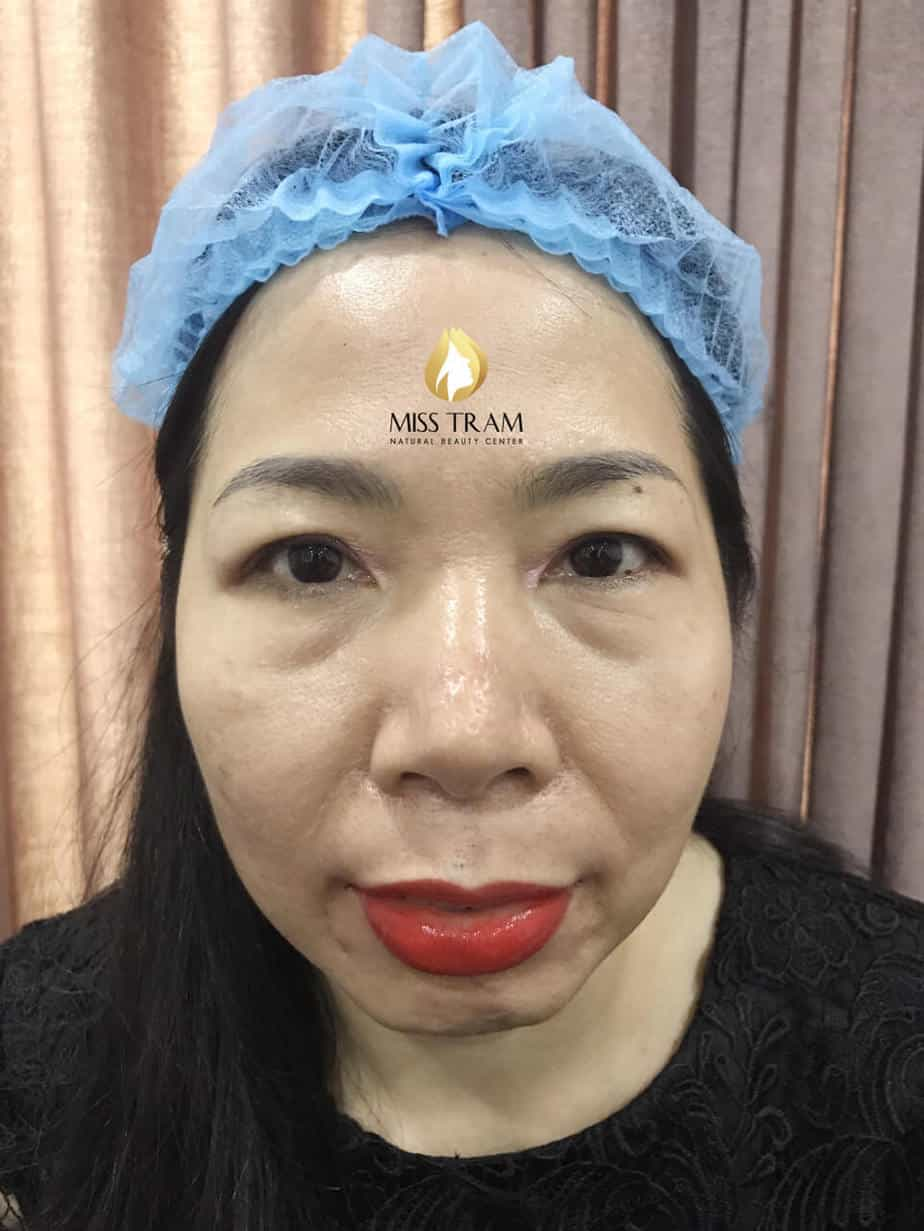 Before And After Treatment Of Blue Eyebrow Sculpting, Head Sculpting And Eyebrow Spraying 2