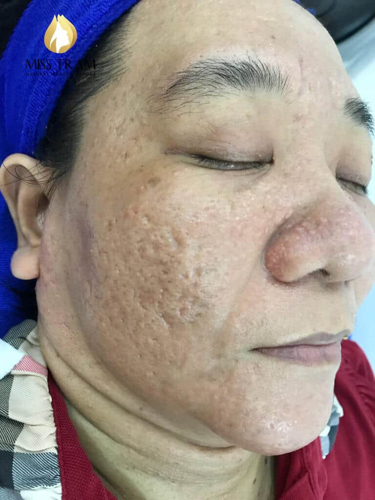 Before and After Acne Treatment - Deep - Concave Scars - Skin Rejuvenation by Fractional CO2 Laser Technology Combined with Oriental Medicine 2