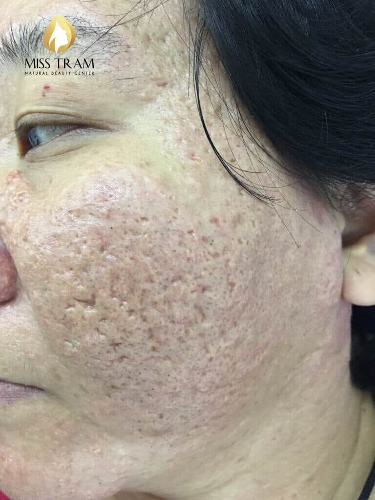 Before and After Acne Treatment - Deep - Concave Scar - Skin Resurfacing with CO2 Laser Fractional Technology Combined with Oriental Medicine 3