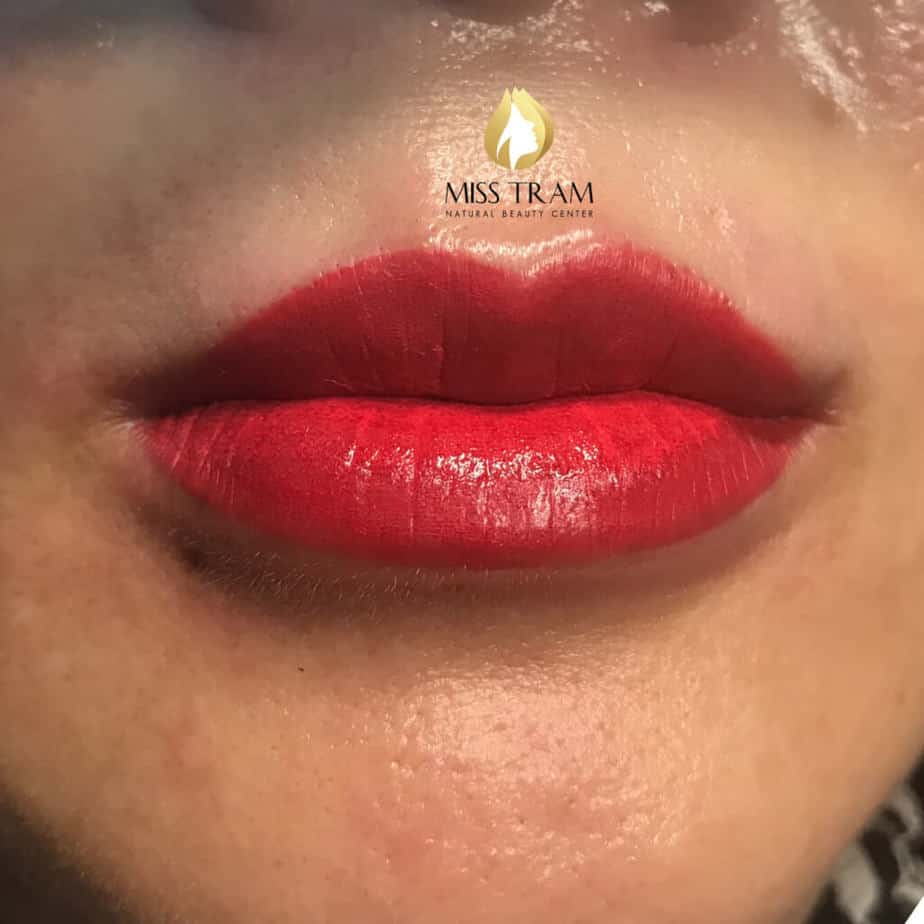 Before and After Treatment Results and Sculpting Queen's Lips For Women 3