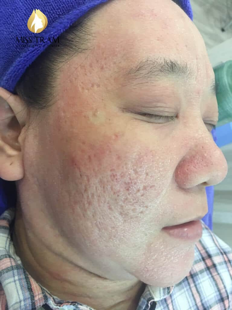 Before and After Acne Treatment - Deep - Concave Scar - Skin Resurfacing with CO2 Laser Fractional Technology Combined with Oriental Medicine 5