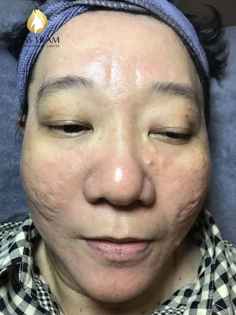 Before and After Acne Treatment - Deep - Concave Scars - Skin Resurfacing with CO2 Fractional Laser Technology Combined with Oriental Medicine 4