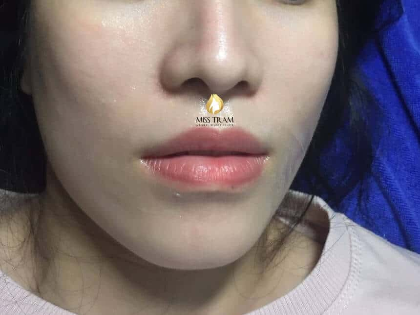 Before and After Results of Sculpting Queen's Lips For Women 3