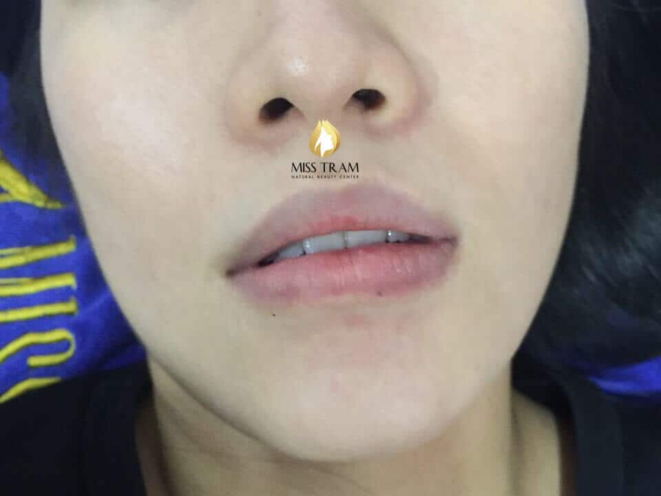 Before and After Results of Sculpting Queen's Lips For Women 2