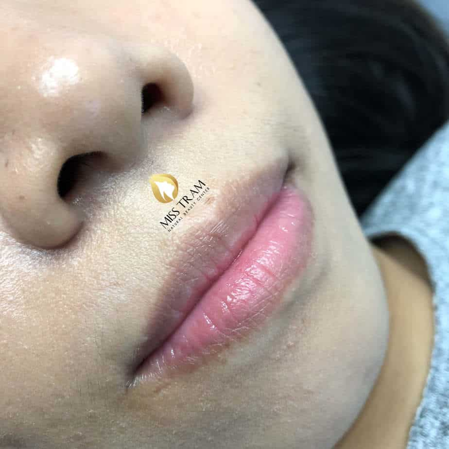 Before And After Treatment And Beauty With Collagen Lip Spray 2