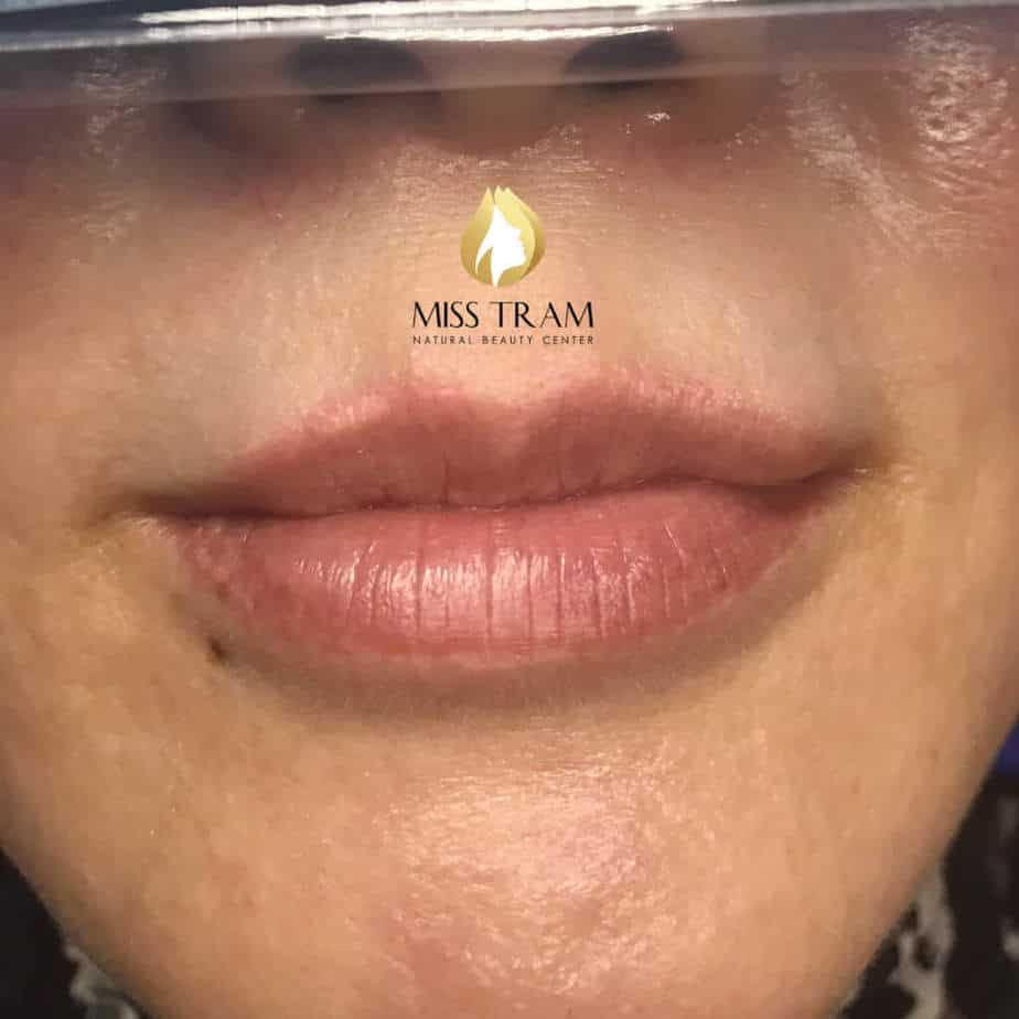 Before and After Treatment Results and Sculpting Queen's Lips For Women 2
