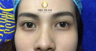 Before and After The Eyelid Spray Results For Women 1