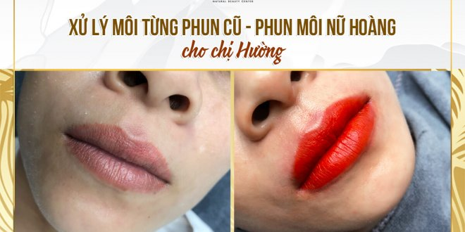 Before And After Treating Old Spray Lips - Sculpting New Queen Lips For Women 1