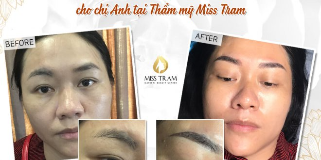 Before and After Results of Performing Beautiful Eyebrow Sculpture for Women 1