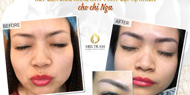 Before and After Beauty Eyebrow Sculpting Method Scraping Fiber 1