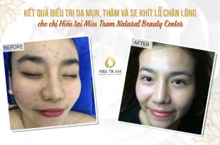 Before And After Deep Cleaning Acne - Tighten Pores with CO2 Fractional Laser Technology 7