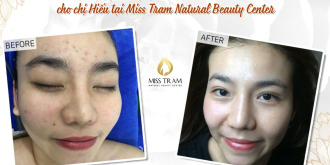 Before And After Deep Cleaning Acne - Tighten Pores with CO2 Fractional Laser Technology 1