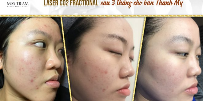 Before and After Acne Treatment Technology with Fractional CO2 Laser Trigger Technology 1