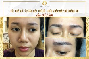 Before and After The Treatment of Red Eyebrows And Sculpting Queen 9D 11