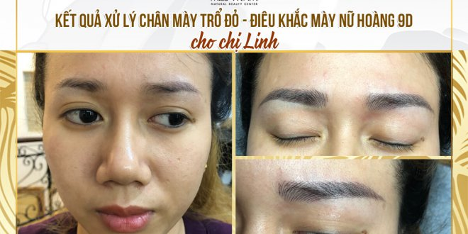 Before and After The Treatment of Red Eyebrows And Sculpting Queen 9D 1