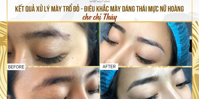 Before and After Results of Treatment of Red Eyebrow and Sculpting of Thai Eyebrows 1