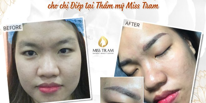 Before and After Performing Beauty Sculpting Technology 1
