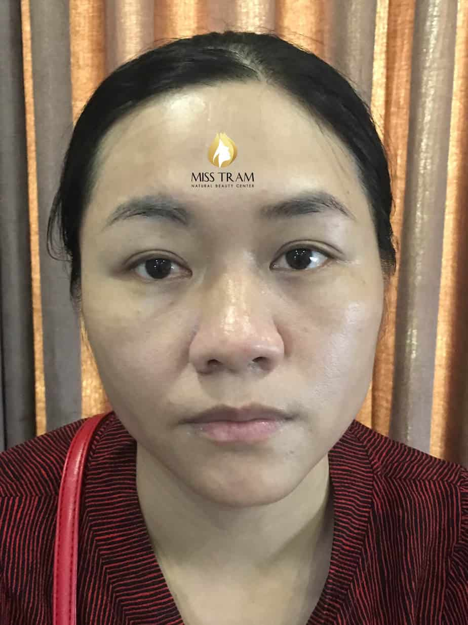 Before and After The Results of Performing Beautiful Eyebrow Sculpture for Women 2
