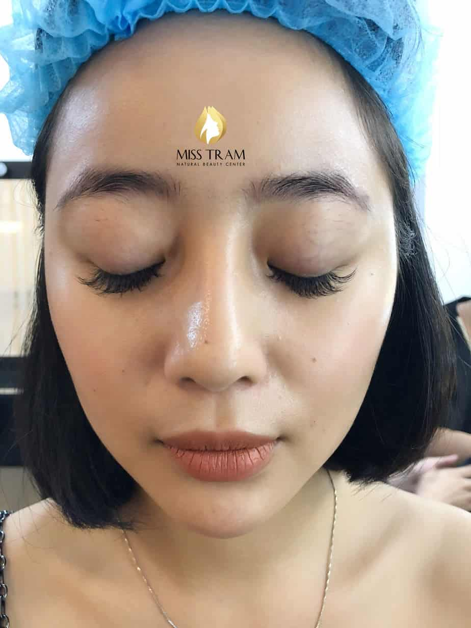Before and After Results of Treatment of Red Eyebrow and Sculpting of Thai Eyebrows 2