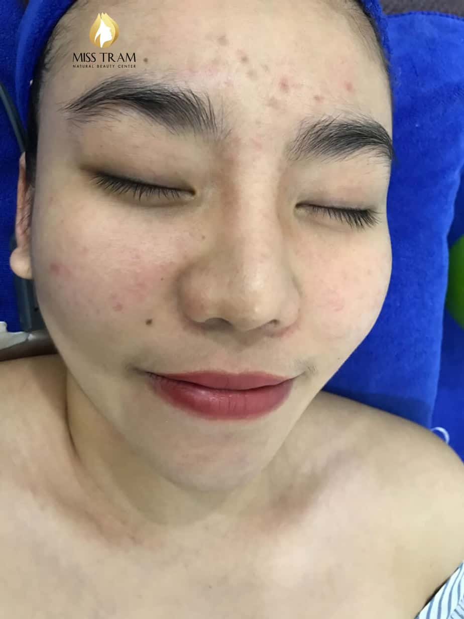 Before And After Deep Cleaning Acne - Tighten Pores with CO2 Fractional Laser Technology 3