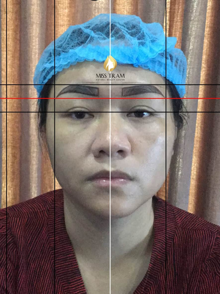 Before and After Results of Performing Beautiful Eyebrow Sculpture for Women 3