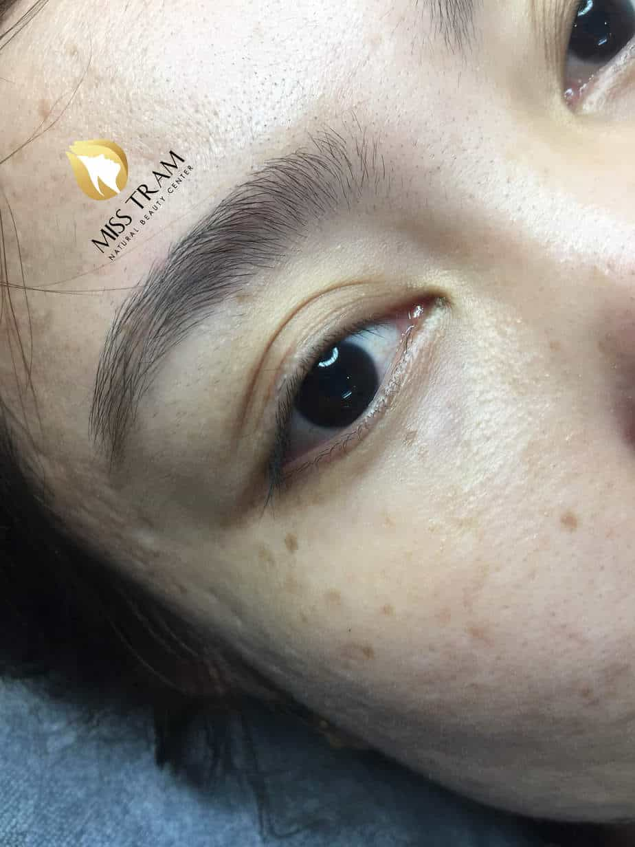 Before and After The Eyelid Spray Results Open Naturally Beautiful For Female Guests 2