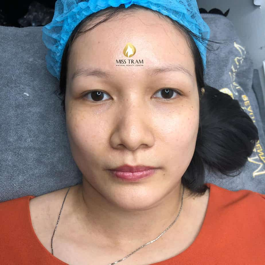 Before And After Performing Sculpted Eyebrow Scraping Natural Fiber 2