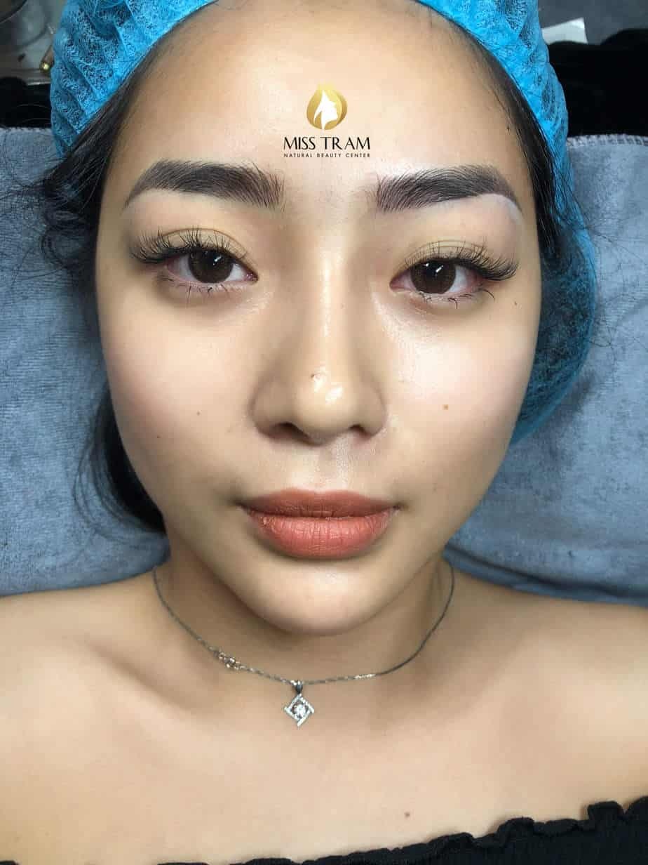 Before and After Results of Treatment Red Eyebrow And Sculpting Thai Eyebrows 4
