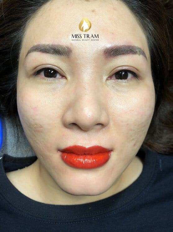 Before And After Treating Old Lips And Sculpting Lips Queen 3