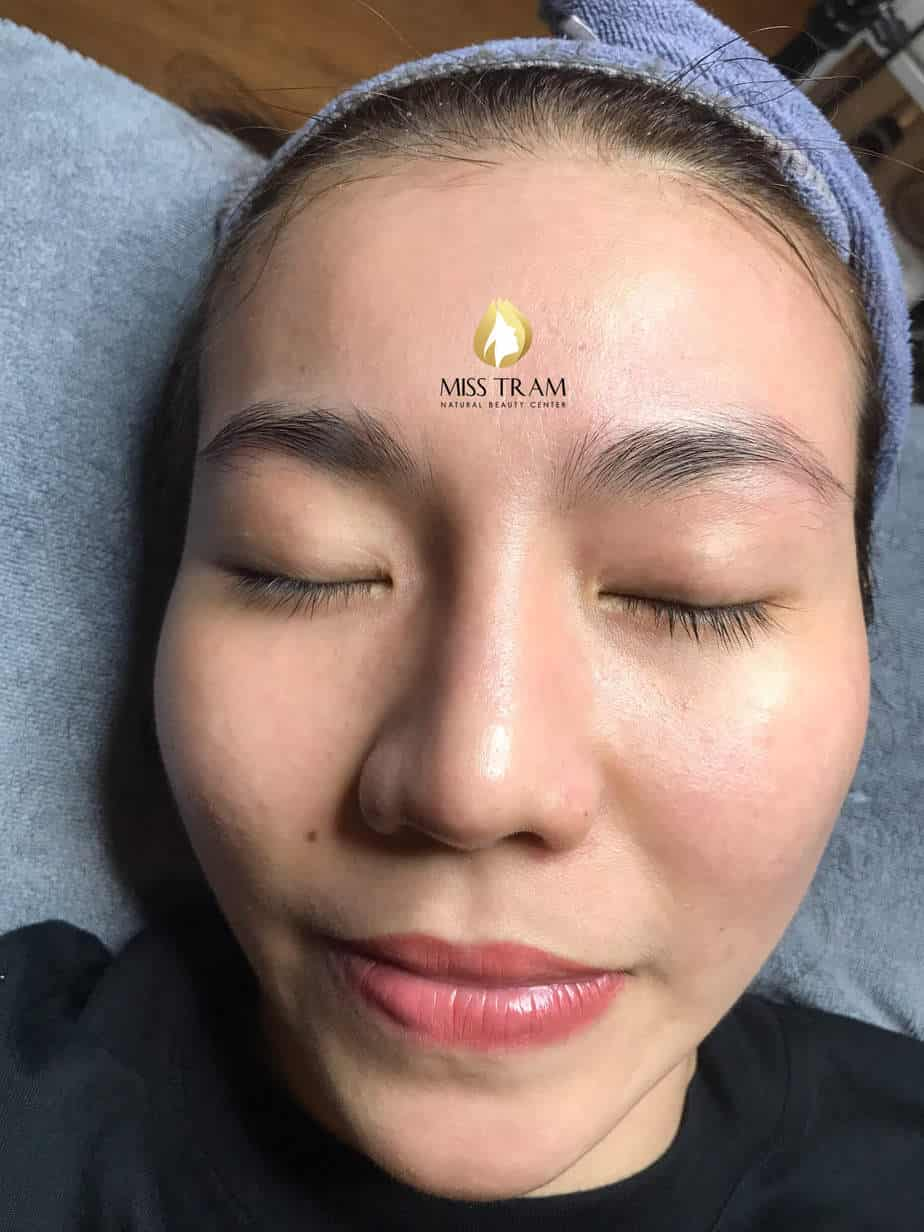 Before And After Deep Cleaning Acne - Tighten Pores With CO2 Fractional Laser Technology 4