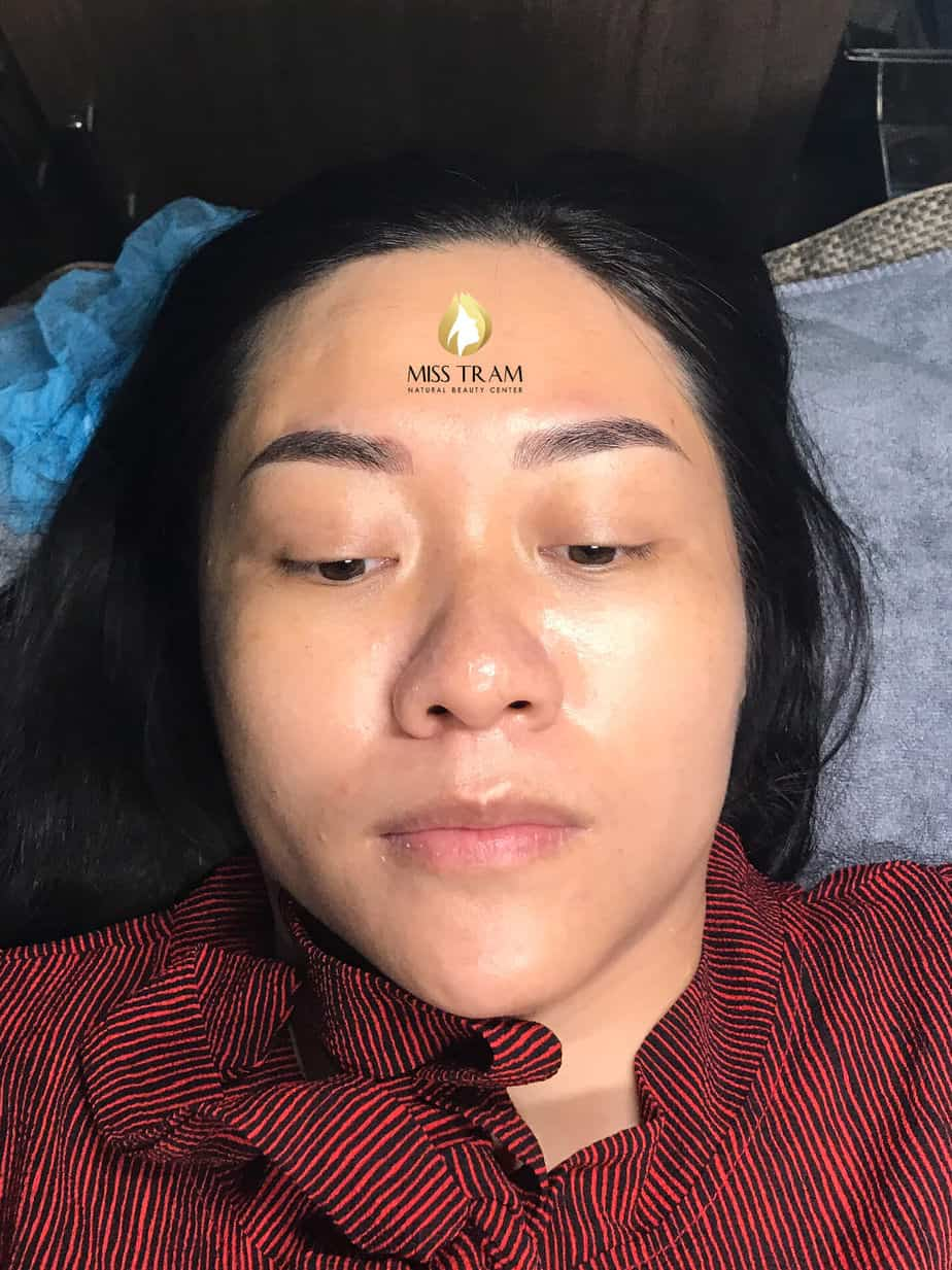 Before and After Results of Performing Beautiful Eyebrow Sculpture for Women 5