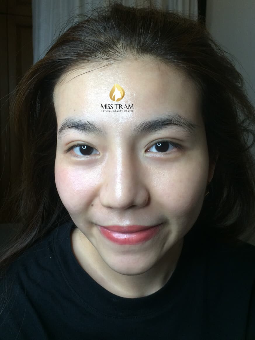 Before And After Deep Cleaning Acne - Tighten Pores With CO2 Fractional Laser Technology 5