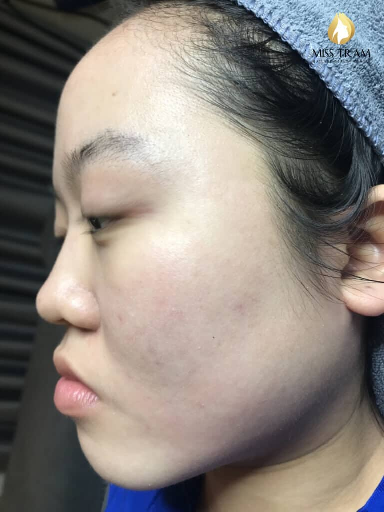 Before and After Acne Treatment Technology Fractional CO2 Laser Trigger 4