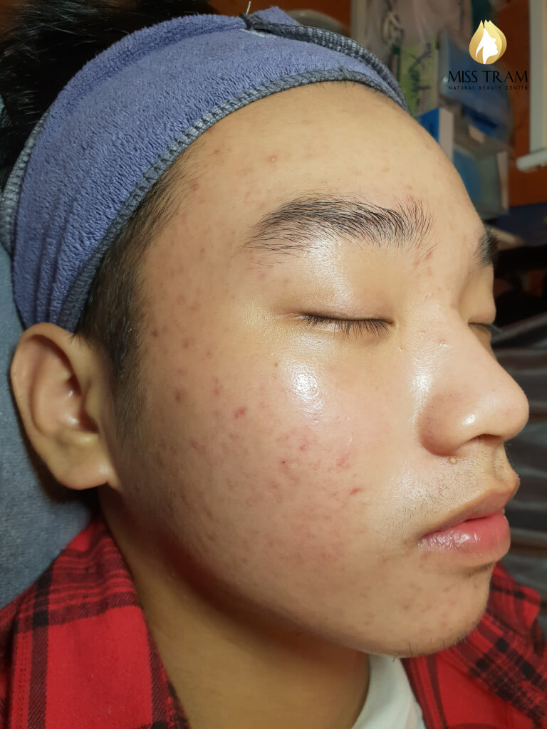Before And After Acne Treatment, Pitting After 5 July