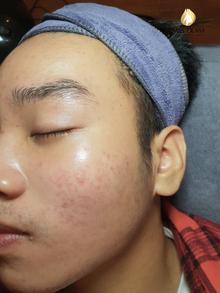 Before And After Acne Treatment, Pitting After August 5