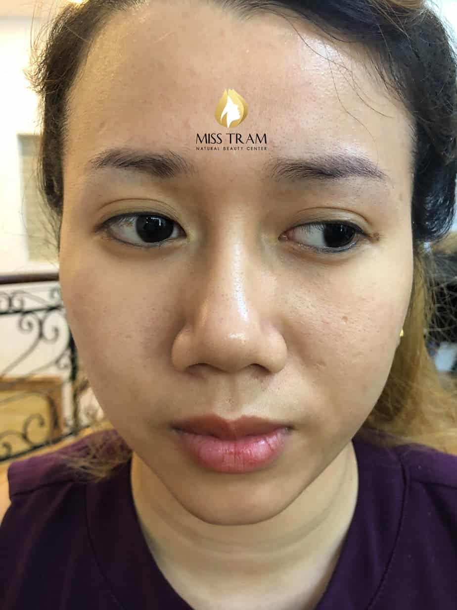 Before and After Results of Handling Red Eyebrow And Sculpting Queen 9D 2